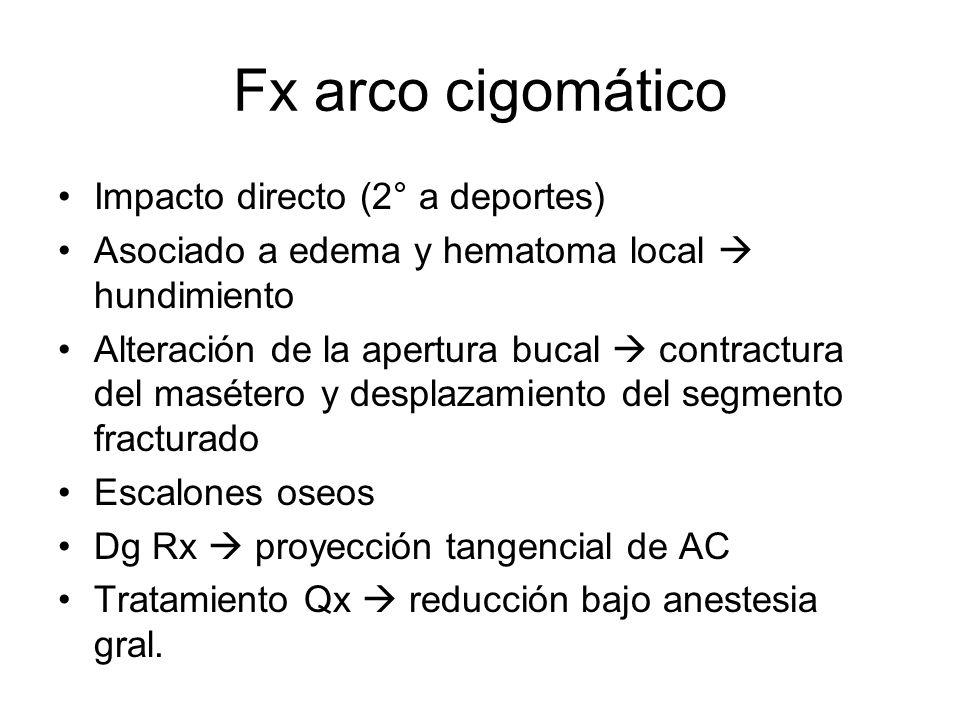 Fx arco cigomático Impacto directo (2° a deportes) Asociado a edema y hematoma local hundimiento Alteración de la apertura bucal contractura del masét