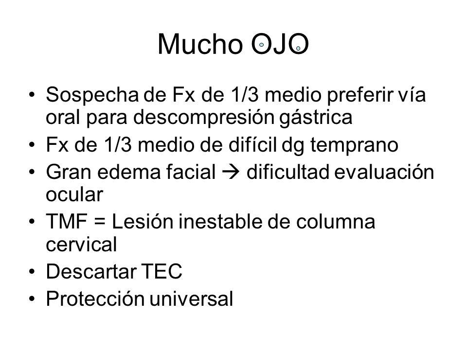 Mucho OJO Sospecha de Fx de 1/3 medio preferir vía oral para descompresión gástrica Fx de 1/3 medio de difícil dg temprano Gran edema facial dificulta