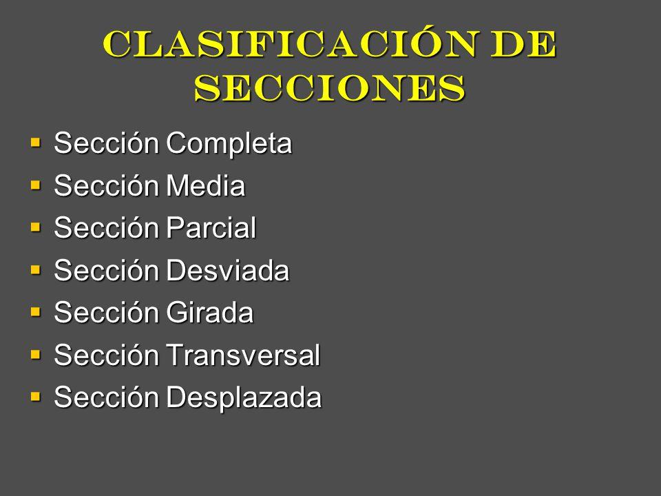 clasificación de secciones Sección Completa Sección Completa Sección Media Sección Media Sección Parcial Sección Parcial Sección Desviada Sección Desv