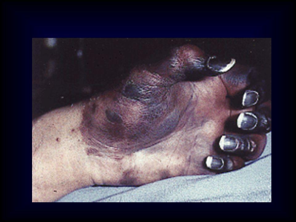 CID - F I S I O P A T O L O G I A PADECIMIENTO PRIMARIO ACTIVACION DE LA HEMOSTASIA COAGULOS EN LA MICROCIRCULACION CONSUNCION DE LOS FACTORES DE LA COAG.