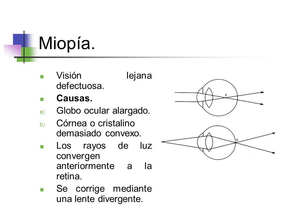Miopía.Visión lejana defectuosa. Causas. a) Globo ocular alargado.