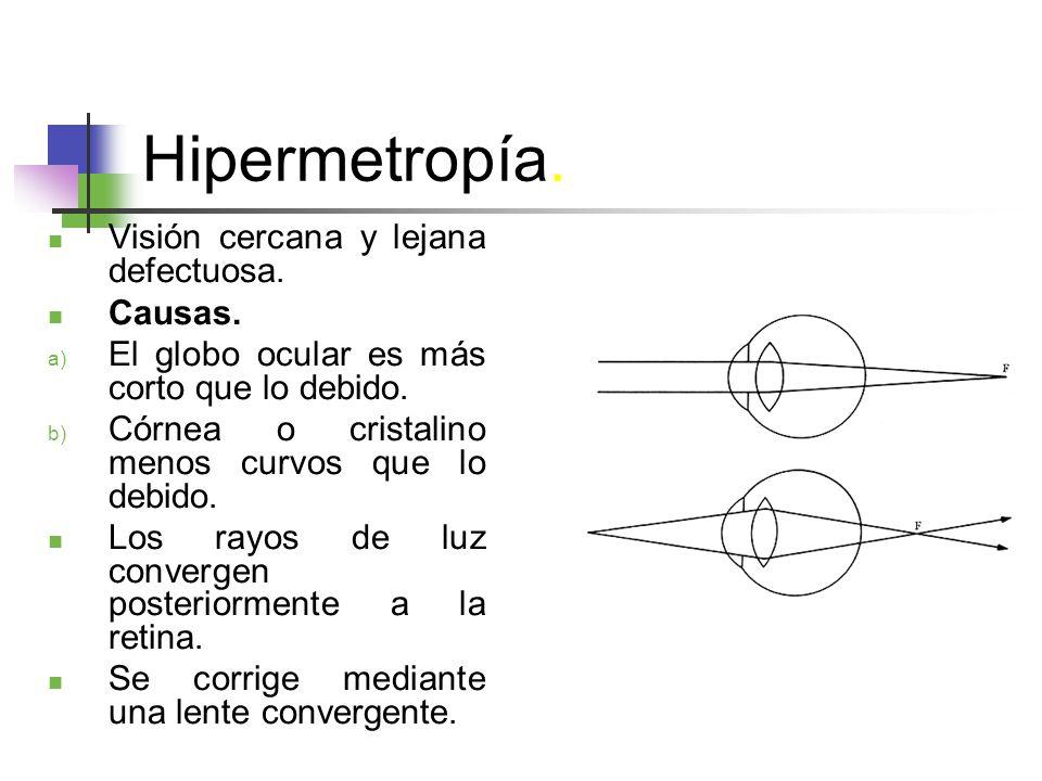 Hipermetropía.Visión cercana y lejana defectuosa.