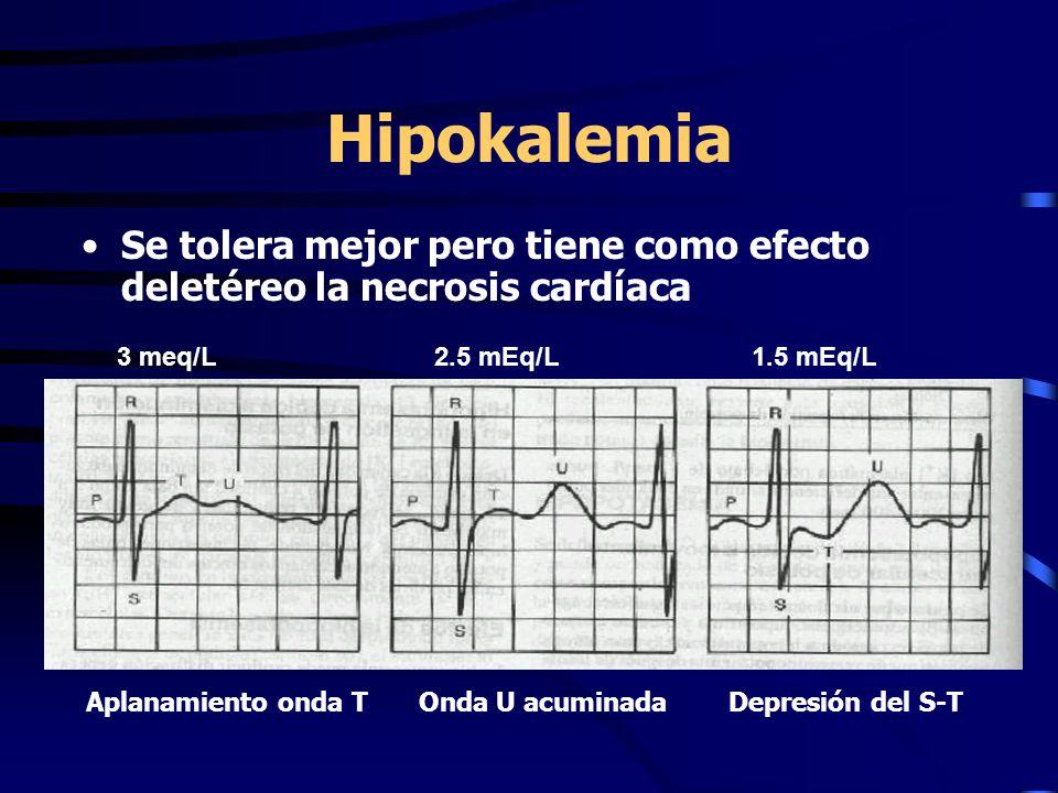 Hipokalemia Se tolera mejor pero tiene como efecto deletéreo la necrosis cardíaca 3 meq/L2.5 mEq/L1.5 mEq/L Aplanamiento onda T Onda U acuminada Depre