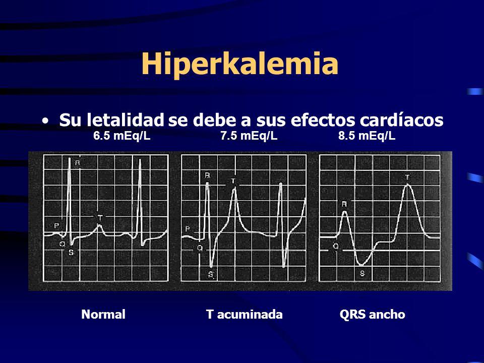 Hiperkalemia Su letalidad se debe a sus efectos cardíacos 6.5 mEq/L 7.5 mEq/L 8.5 mEq/L Normal T acuminadaQRS ancho