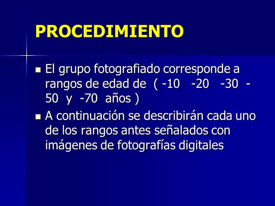 PROCEDIMIENTO El grupo fotografiado corresponde a rangos de edad de ( -10 -20 -30 - 50 y -70 años ) El grupo fotografiado corresponde a rangos de edad