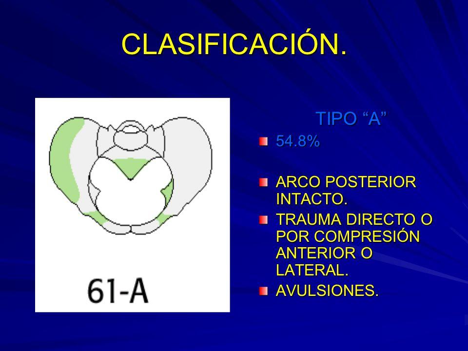 CLASIFICACIÓN.TIPO A 54.8% ARCO POSTERIOR INTACTO.
