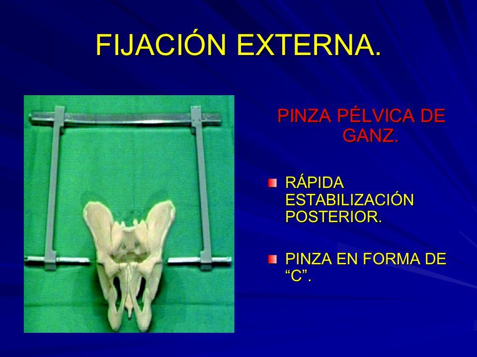 FIJACIÓN EXTERNA. PINZA PÉLVICA DE GANZ. RÁPIDA ESTABILIZACIÓN POSTERIOR. PINZA EN FORMA DE C.