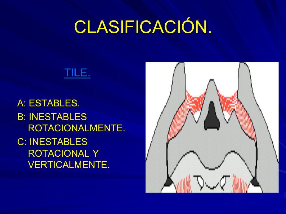 CLASIFICACIÓN.TILE. A: ESTABLES. B: INESTABLES ROTACIONALMENTE.