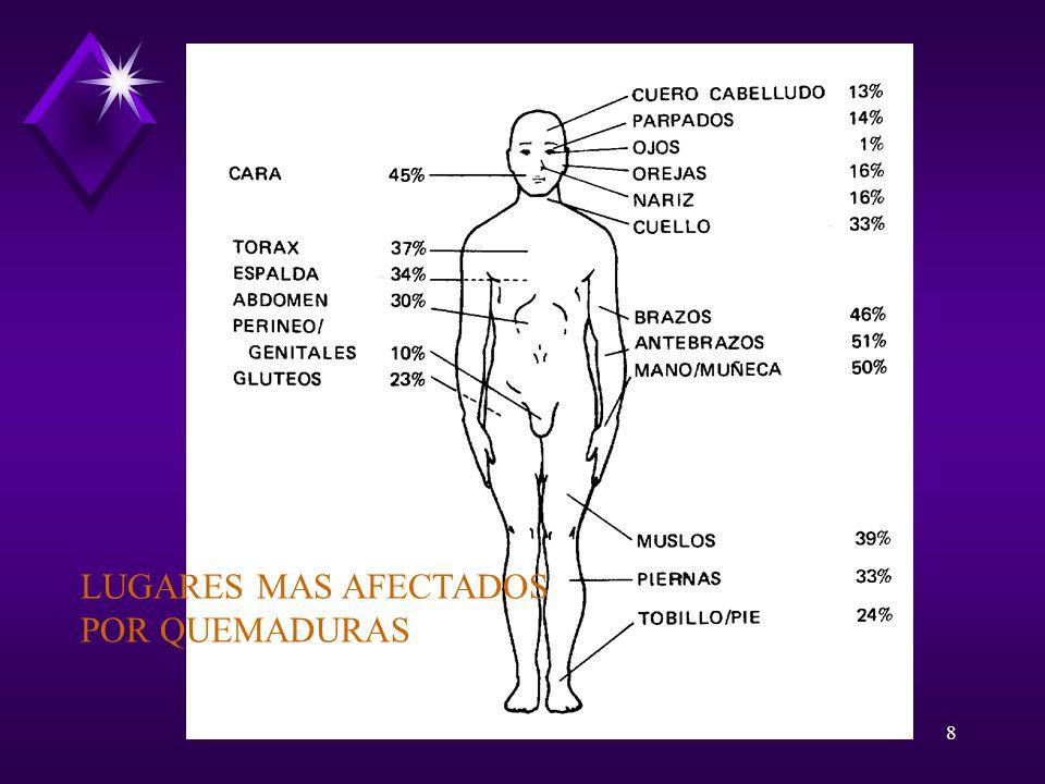 8 LUGARES MAS AFECTADOS POR QUEMADURAS
