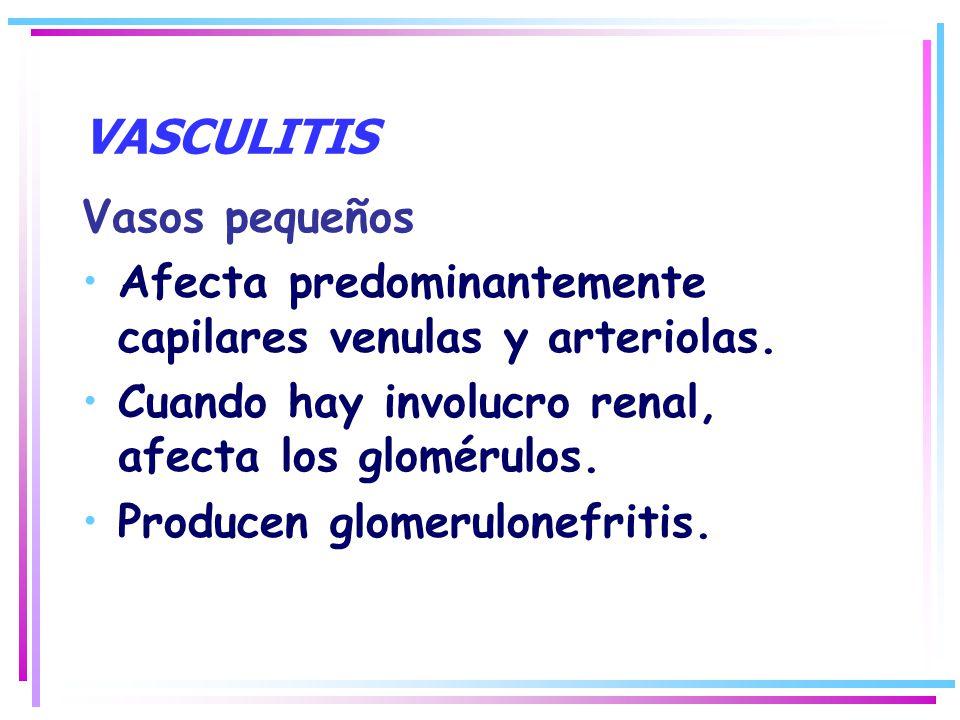 VASCULITIS Vasos pequeños Afecta predominantemente capilares venulas y arteriolas. Cuando hay involucro renal, afecta los glomérulos. Producen glomeru