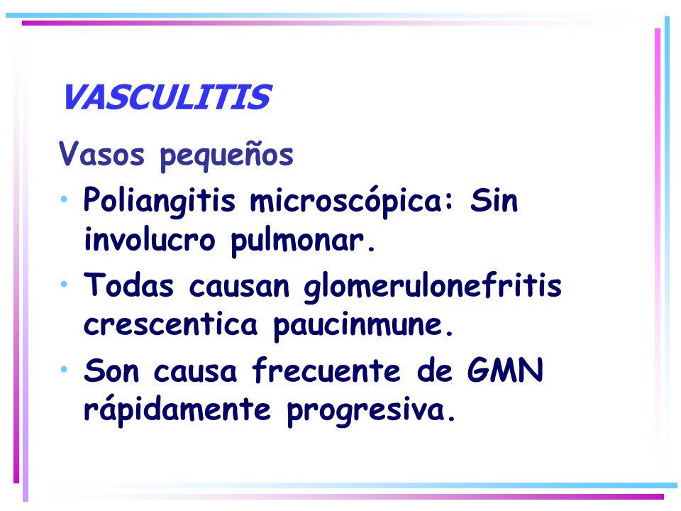 VASCULITIS Vasos pequeños Poliangitis microscópica: Sin involucro pulmonar. Todas causan glomerulonefritis crescentica paucinmune. Son causa frecuente