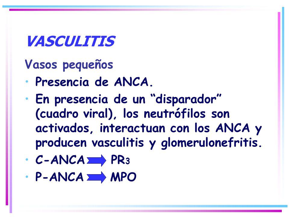 VASCULITIS Vasos pequeños Presencia de ANCA. En presencia de un disparador (cuadro viral), los neutrófilos son activados, interactuan con los ANCA y p