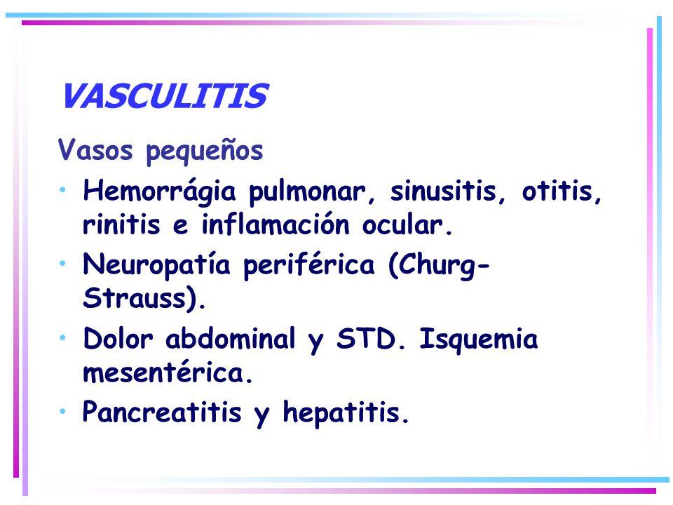 VASCULITIS Vasos pequeños Hemorrágia pulmonar, sinusitis, otitis, rinitis e inflamación ocular. Neuropatía periférica (Churg- Strauss). Dolor abdomina