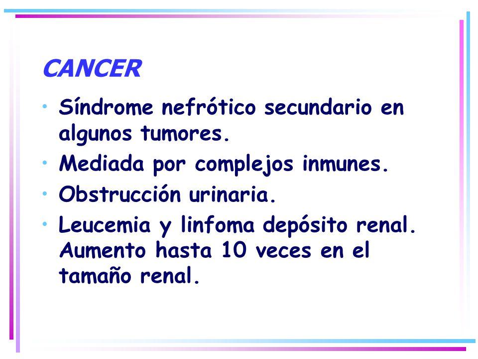 CANCER Síndrome nefrótico secundario en algunos tumores. Mediada por complejos inmunes. Obstrucción urinaria. Leucemia y linfoma depósito renal. Aumen