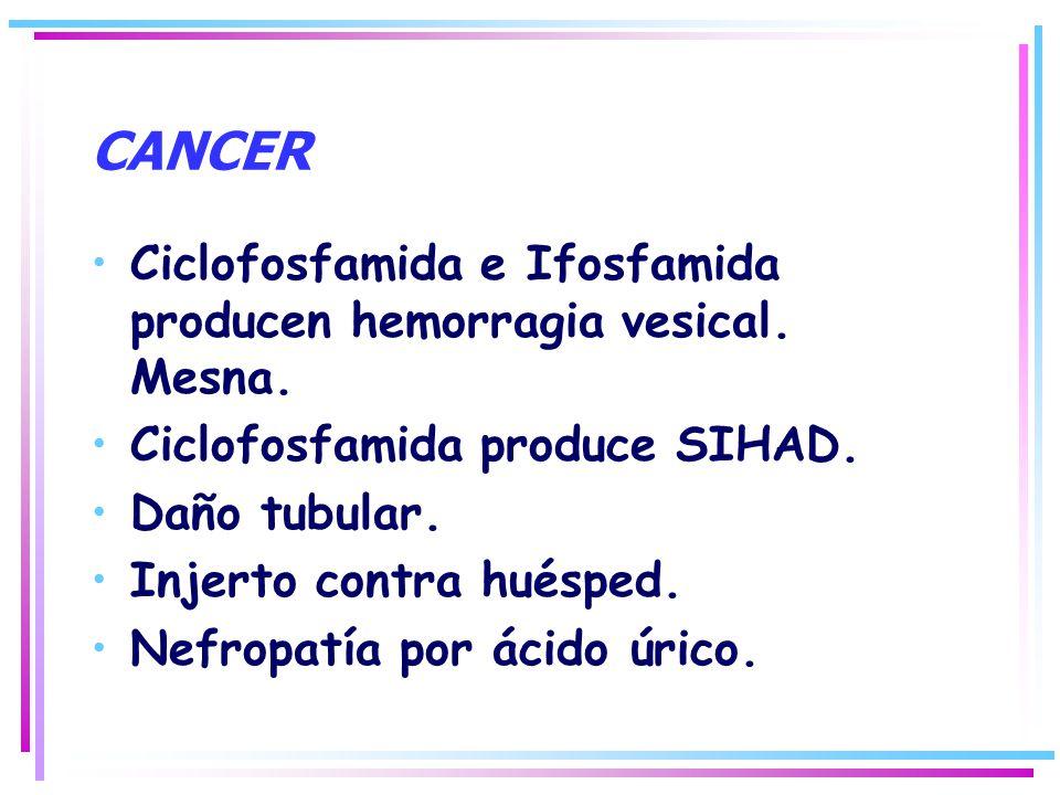 CANCER Ciclofosfamida e Ifosfamida producen hemorragia vesical. Mesna. Ciclofosfamida produce SIHAD. Daño tubular. Injerto contra huésped. Nefropatía