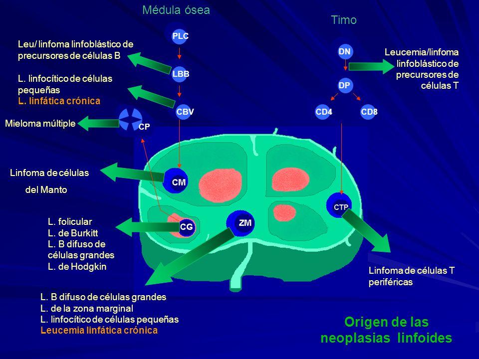 Estadificación de Binet Estadio EstadioSangrePeriférica Ganglios Linfáticos Sobrevida Media (años) ALinfocitosis Hb > 10 gr/dl Plaq > 100 x 10 9 /l < 3 áreas afectadas > 10 > 10 BLinfocitosis Hb >10 gr/dl Plaq > 100 x 10 9 /l > 3 áreas afectadas 7 CLinfocitosis Hb < 10 gr/dl y/o Plaq < 100 x 10 9/ l Cualquier N° de áreas 2 J.