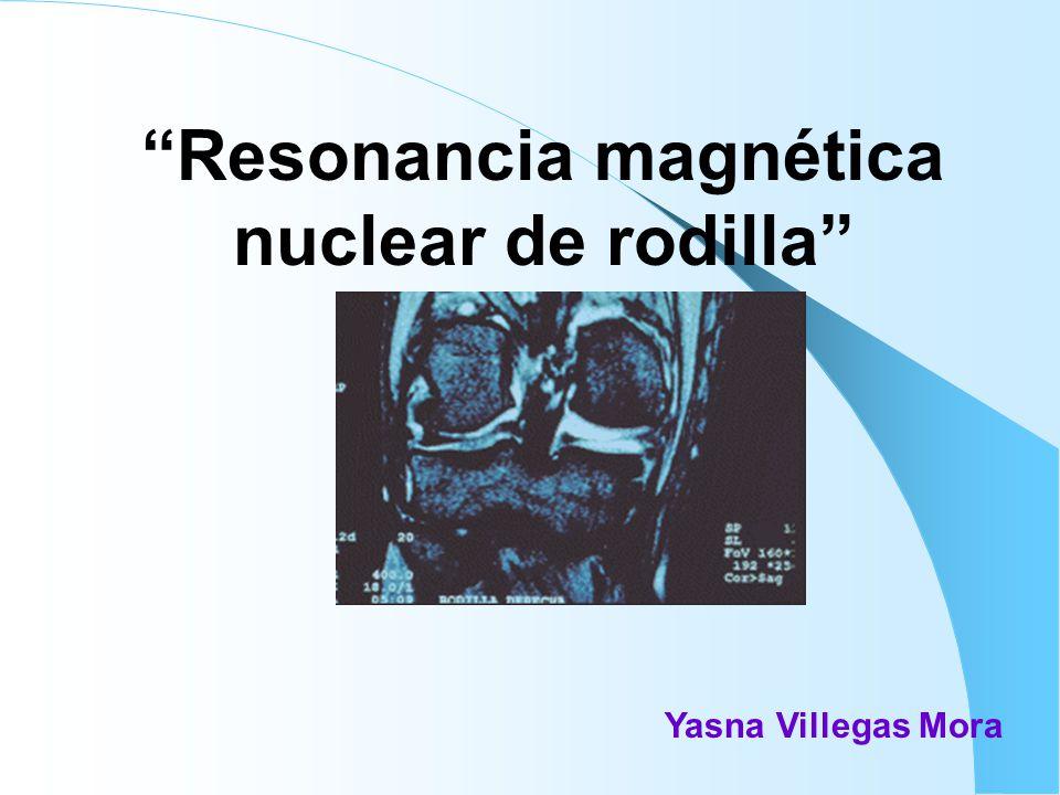 Resonancia magnética nuclear de rodilla Yasna Villegas Mora