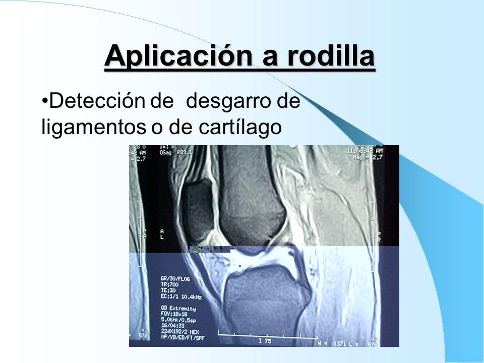 Aplicación a rodilla Detección de desgarro de ligamentos o de cartílago