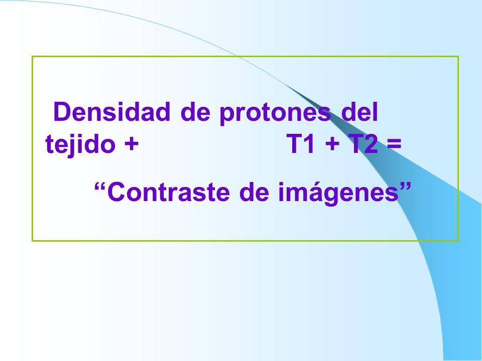 Densidad de protones del tejido + T1 + T2 = Contraste de imágenes