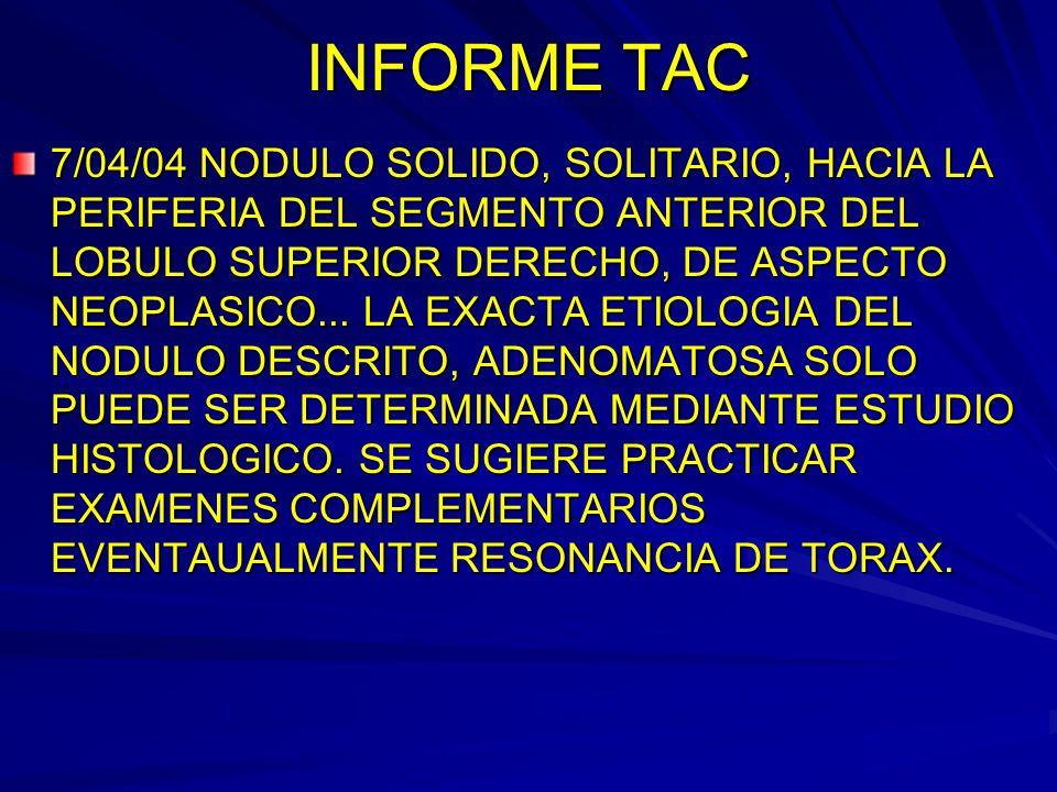 INFORME TAC 7/04/04 NODULO SOLIDO, SOLITARIO, HACIA LA PERIFERIA DEL SEGMENTO ANTERIOR DEL LOBULO SUPERIOR DERECHO, DE ASPECTO NEOPLASICO... LA EXACTA