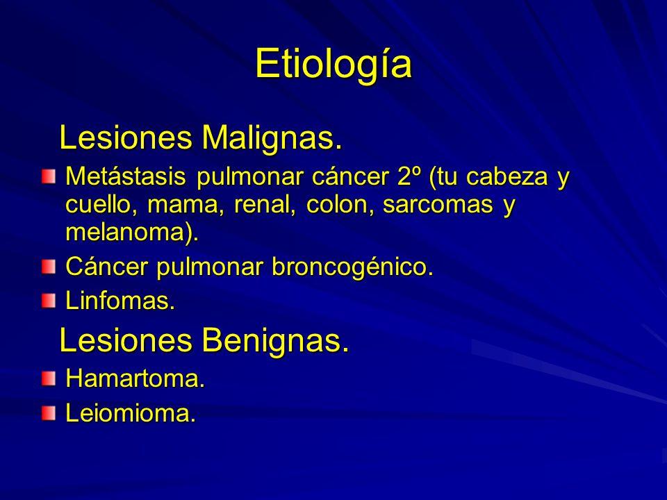 Etiología Lesiones Malignas. Lesiones Malignas. Metástasis pulmonar cáncer 2º (tu cabeza y cuello, mama, renal, colon, sarcomas y melanoma). Cáncer pu