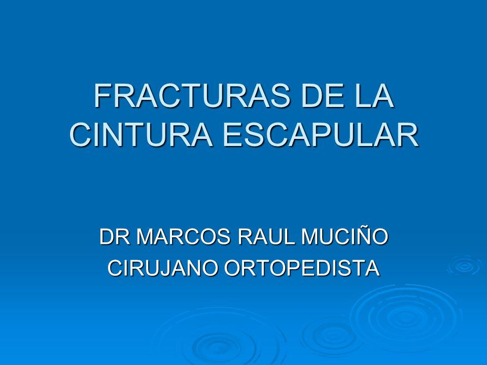 FRACTURAS DE LA CINTURA ESCAPULAR DR MARCOS RAUL MUCIÑO CIRUJANO ORTOPEDISTA