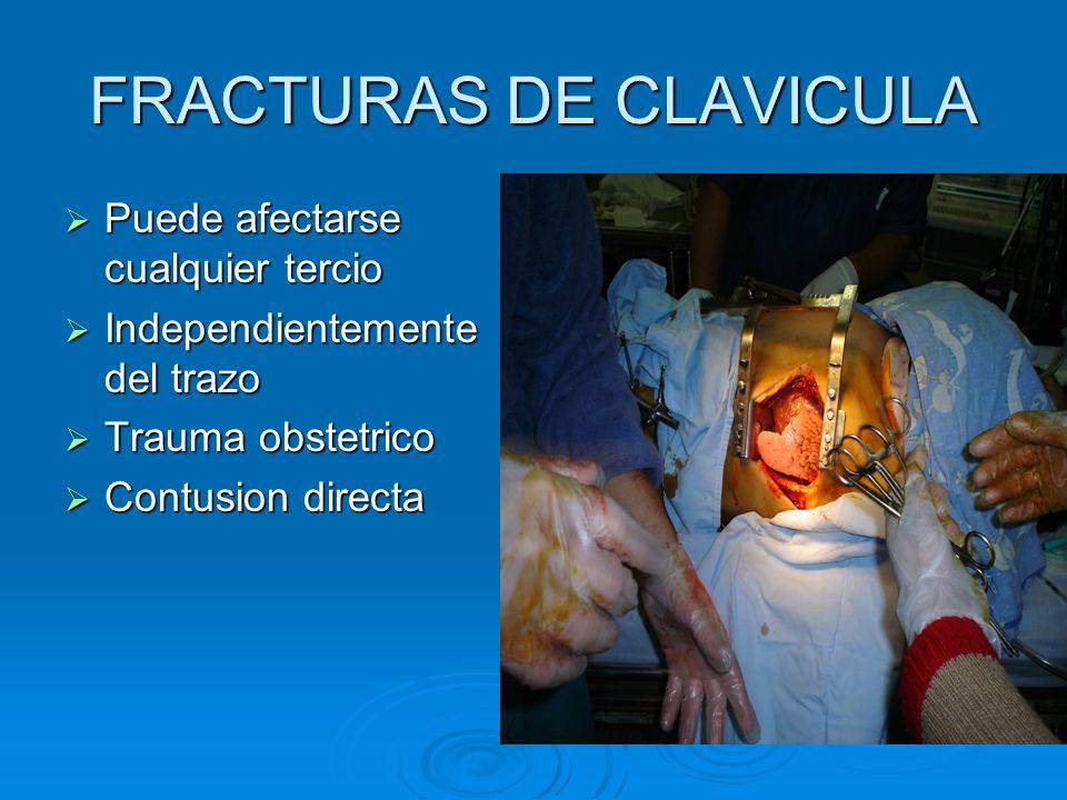 FRACTURAS DE CLAVICULA Puede afectarse cualquier tercio Puede afectarse cualquier tercio Independientemente del trazo Independientemente del trazo Trauma obstetrico Trauma obstetrico Contusion directa Contusion directa