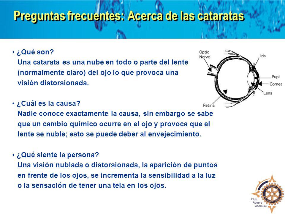 Preguntas frecuentes:Acerca de las cataratas ¿Qué son? Una catarata es una nube en todo o parte del lente (normalmente claro) del ojo lo que provoca u