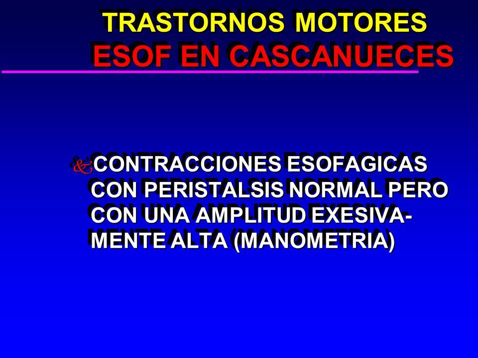 TRASTORNOS MOTORES ESOF EN CASCANUECES TRASTORNOS MOTORES ESOF EN CASCANUECES k CONTRACCIONES ESOFAGICAS CON PERISTALSIS NORMAL PERO CON UNA AMPLITUD EXESIVA- MENTE ALTA (MANOMETRIA)