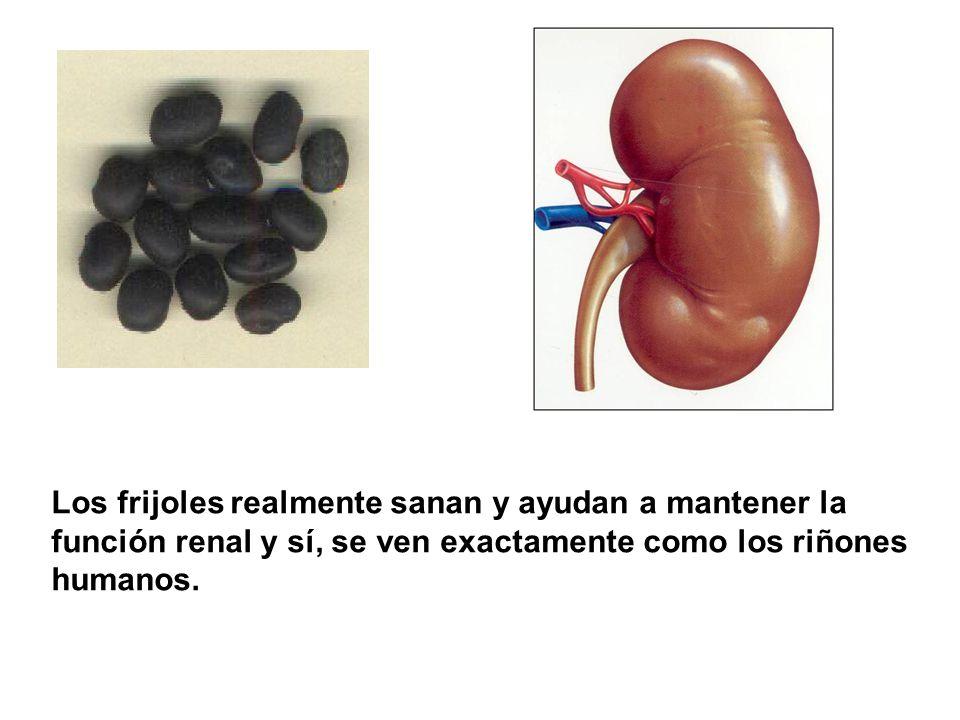 Los frijoles realmente sanan y ayudan a mantener la función renal y sí, se ven exactamente como los riñones humanos.