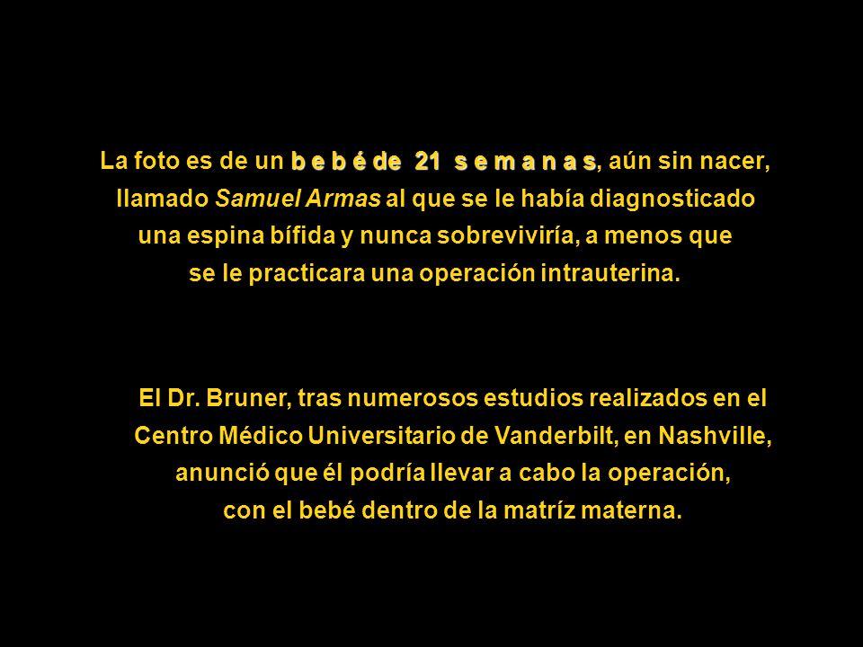 La foto es de un b e b é de 21 s e m a n a s s, aún sin nacer, llamado Samuel Armas al que se le había diagnosticado una espina bífida y nunca sobreviviría, a menos que se le practicara una operación intrauterina.