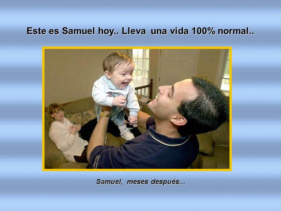 Samuel, meses después... Este es Samuel hoy.. Lleva una vida 100% normal..