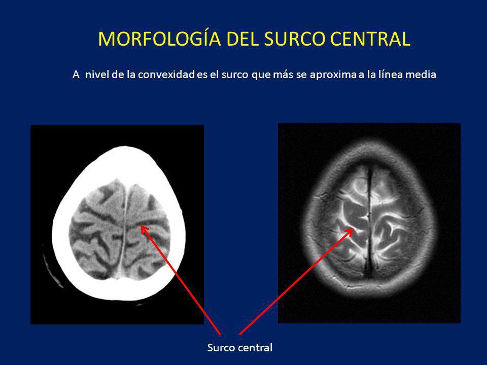 Surco central MORFOLOGÍA DEL SURCO CENTRAL A nivel de la convexidad es el surco que más se aproxima a la línea media