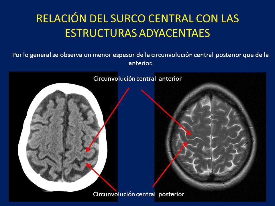 RELACIÓN DEL SURCO CENTRAL CON LAS ESTRUCTURAS ADYACENTAES Por lo general se observa un menor espesor de la circunvolución central posterior que de la anterior.