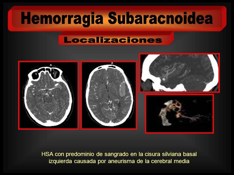 HSA con predominio de sangrado en la cisura silviana basal izquierda causada por aneurisma de la cerebral media