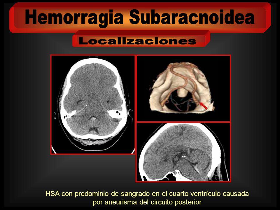 HSA con predominio de sangrado en el cuarto ventrículo causada por aneurisma del circuito posterior