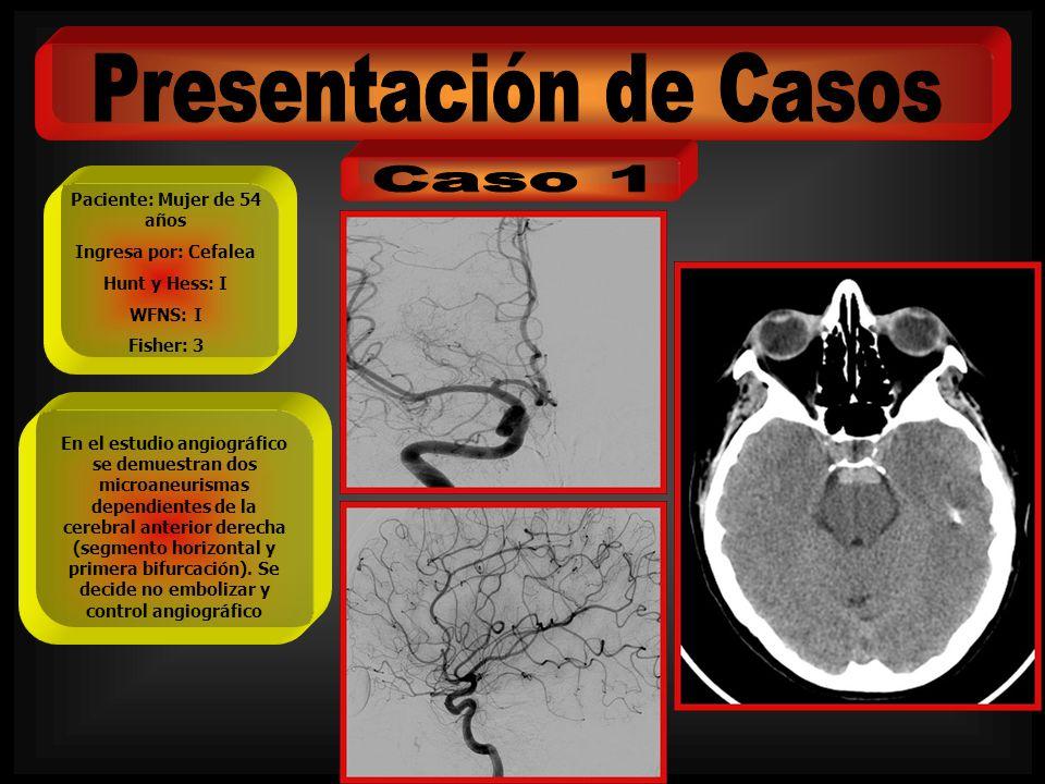 Paciente: Mujer de 54 años Ingresa por: Cefalea Hunt y Hess: I WFNS: I Fisher: 3 En el estudio angiográfico se demuestran dos microaneurismas dependie