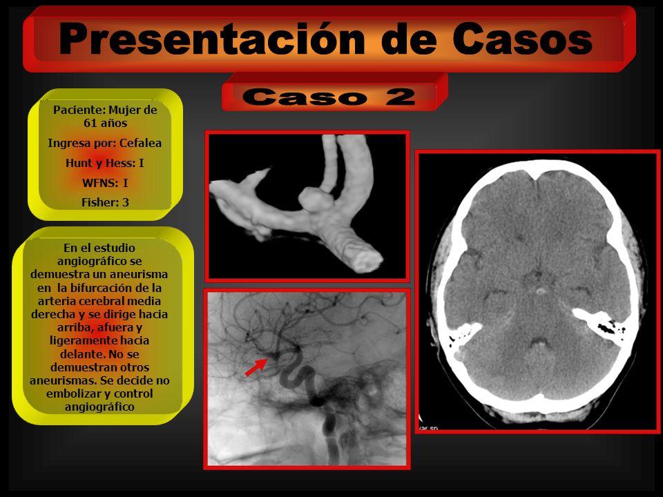 Paciente: Mujer de 61 años Ingresa por: Cefalea Hunt y Hess: I WFNS: I Fisher: 3 En el estudio angiográfico se demuestra un aneurisma en la bifurcació