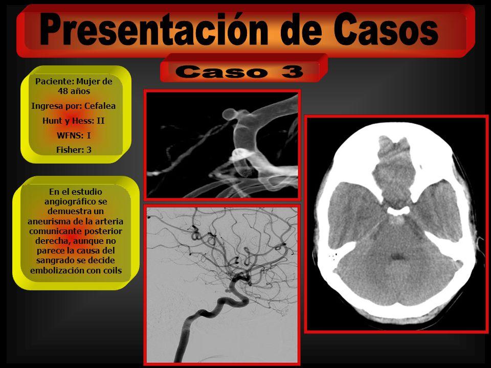 Paciente: Mujer de 48 años Ingresa por: Cefalea Hunt y Hess: II WFNS: I Fisher: 3 En el estudio angiográfico se demuestra un aneurisma de la arteria c