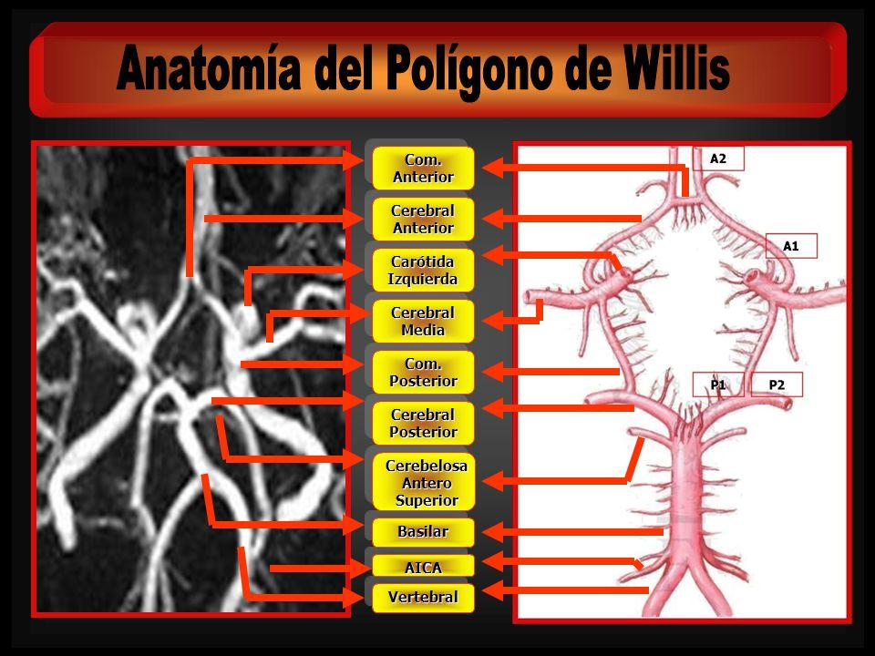 Paciente: Mujer de 54 años Ingresa por: Cefalea Hunt y Hess: I WFNS: I Fisher: 3 En el estudio angiográfico se demuestran dos microaneurismas dependientes de la cerebral anterior derecha (segmento horizontal y primera bifurcación).
