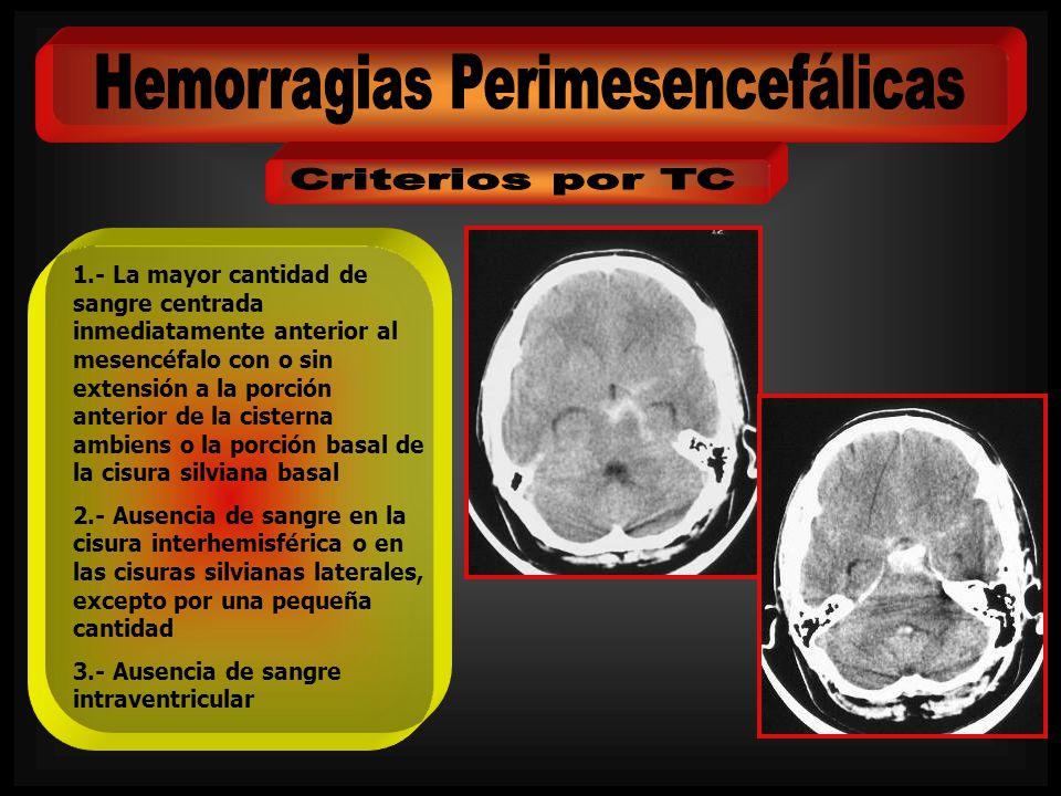 Paciente: Mujer de 48 años Ingresa por: Cefalea Hunt y Hess: II WFNS: I Fisher: 3 En el estudio angiográfico se demuestra un aneurisma de la arteria comunicante posterior derecha, aunque no parece la causa del sangrado se decide embolización con coils