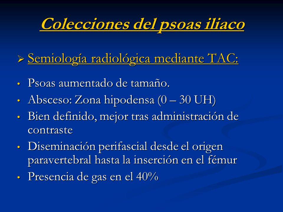 Colecciones del psoas iliaco Semiología radiológica mediante TAC: Semiología radiológica mediante TAC: Psoas aumentado de tamaño. Psoas aumentado de t