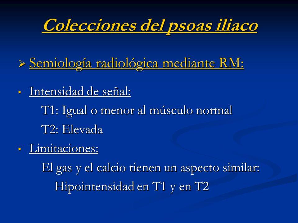 Colecciones del psoas iliaco Semiología radiológica mediante RM: Semiología radiológica mediante RM: Intensidad de señal: Intensidad de señal: T1: Igu
