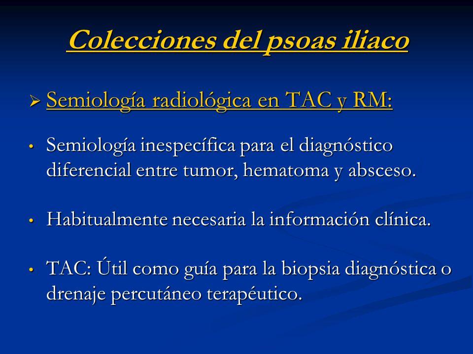 Colecciones del psoas iliaco Semiología radiológica en TAC y RM: Semiología radiológica en TAC y RM: Semiología inespecífica para el diagnóstico difer