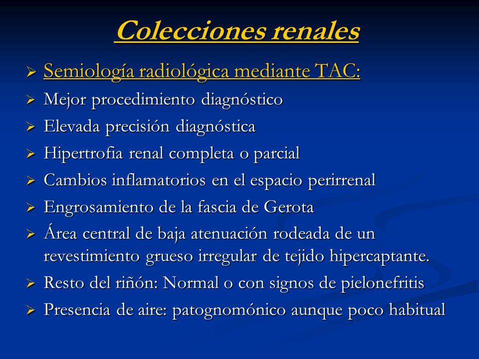 Colecciones renales Semiología radiológica mediante TAC: Semiología radiológica mediante TAC: Mejor procedimiento diagnóstico Mejor procedimiento diag