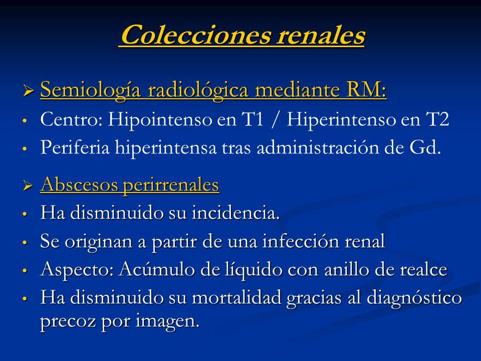 Colecciones renales Semiología radiológica mediante RM: Semiología radiológica mediante RM: Centro: Hipointenso en T1 / Hiperintenso en T2 Periferia h