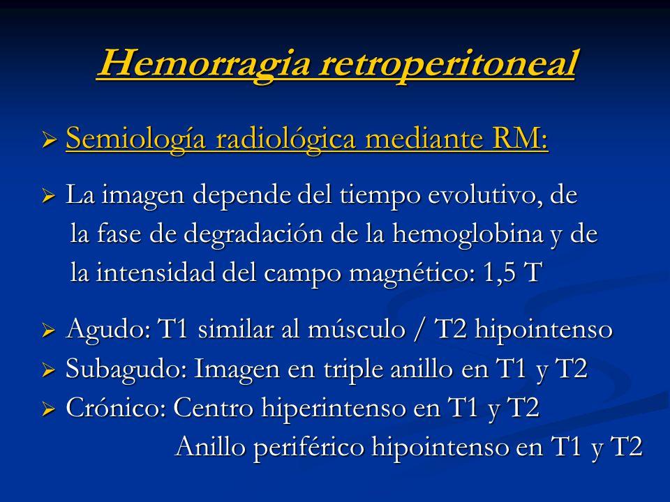 Hemorragia retroperitoneal Semiología radiológica mediante RM: Semiología radiológica mediante RM: La imagen depende del tiempo evolutivo, de La image