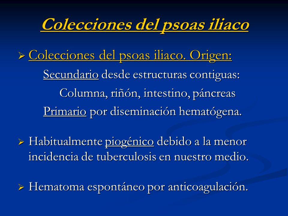 Colecciones del psoas iliaco Colecciones del psoas iliaco. Origen: Colecciones del psoas iliaco. Origen: Secundario desde estructuras contiguas: Secun