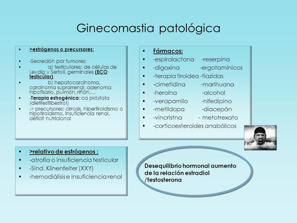 Ginecomastia patológica >estrógenos o precursores: -Secreción por tumores: a) testiculares: de células de Leydig y Sertoli, germinales (ECO testicular) b) hepatocarcinoma, carcinoma suprarrenal, adenoma hipofisario, pulmón, riñón,… - Terapia estrogénica : ca próstata (dietilestilbestrol) -> precursores: cirrosis, hipertiroidismo o hipotiroidismo, insuficiencia renal, déficit nutricional >relativo de estrógenos : -atrofia o insuficiencia testicular -Sind.