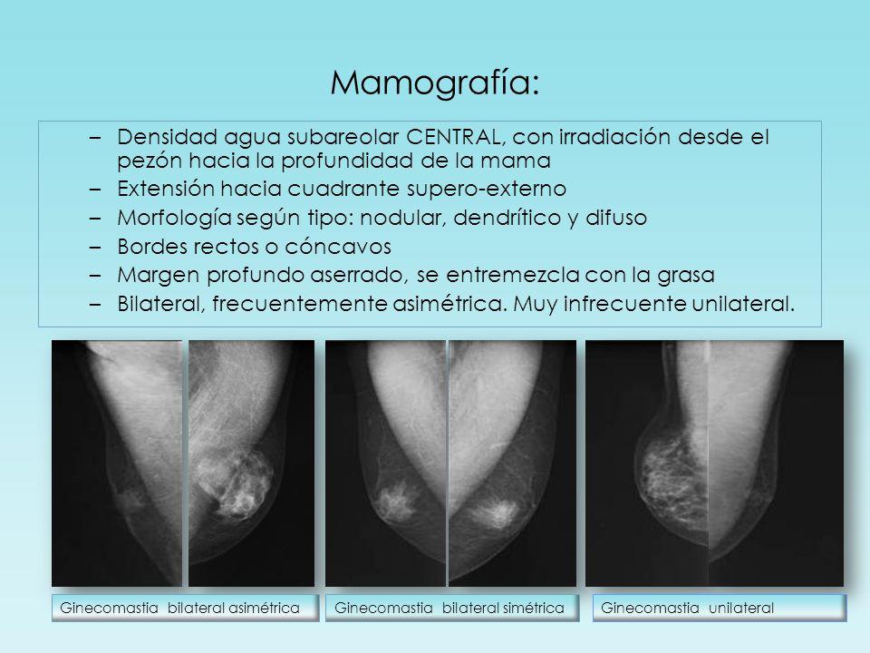 Mamografía: –Densidad agua subareolar CENTRAL, con irradiación desde el pezón hacia la profundidad de la mama –Extensión hacia cuadrante supero-externo –Morfología según tipo: nodular, dendrítico y difuso –Bordes rectos o cóncavos –Margen profundo aserrado, se entremezcla con la grasa –Bilateral, frecuentemente asimétrica.